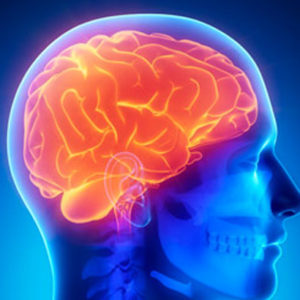 Naturopathic CE Course Brain Disorders