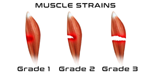 Muscle Injuries Naturopathic CEU Course