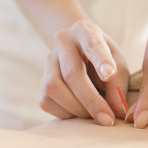 Naturopathic CE Acupuncture Courses