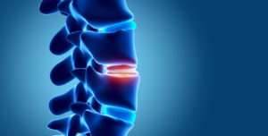 Naturopathic CE for Degenerative Disc Disease